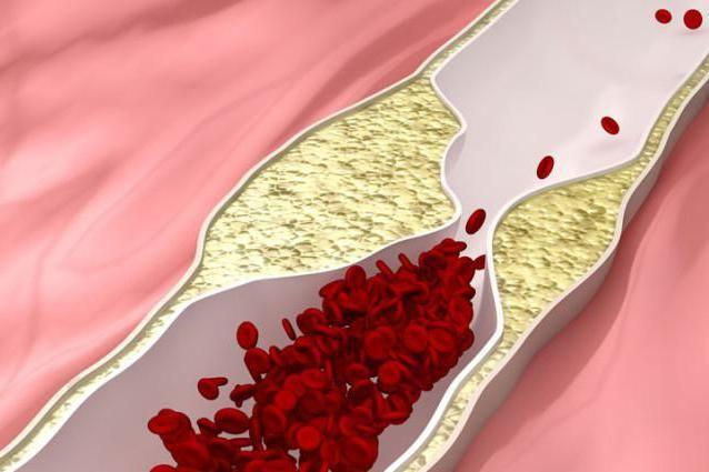 ateroskleroza stenoziranje
