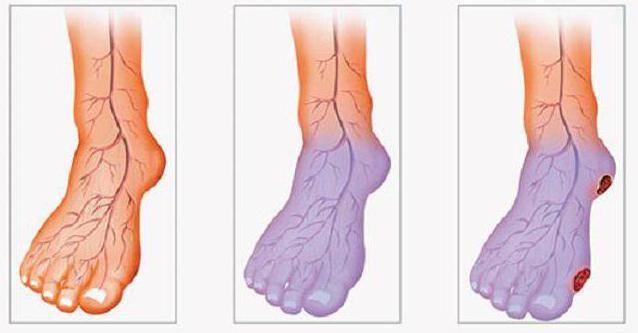 stenozirajoča ateroskleroza spodnjih okončin