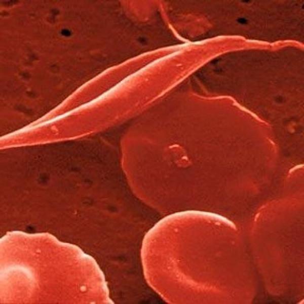 anemija mikrocitoze