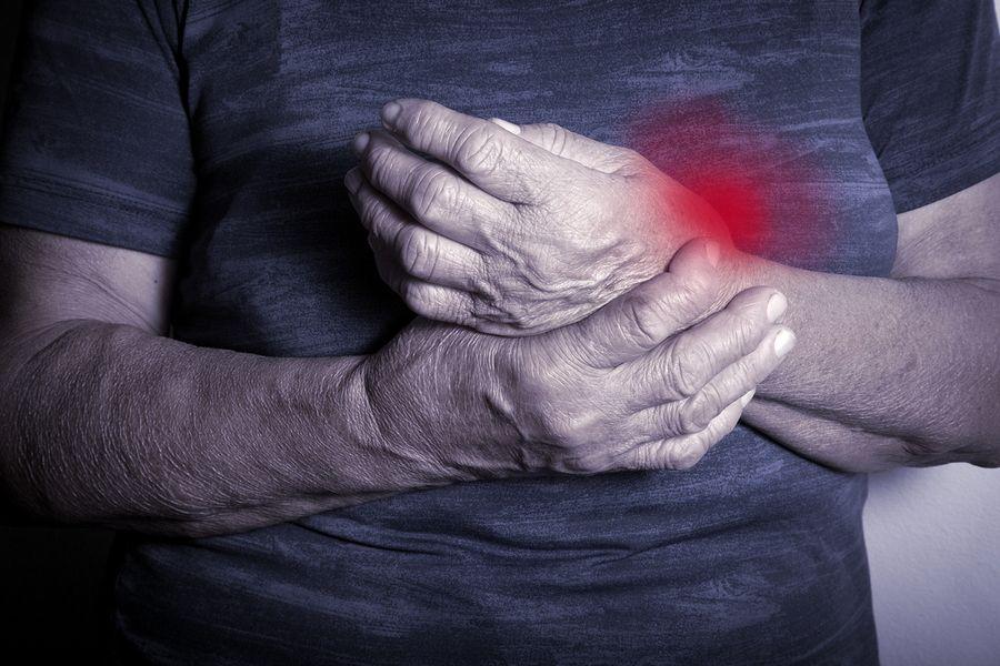 Simptomi Reiterjevega sindroma
